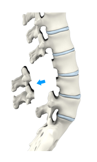 Lumbar and Cervical Laminectomy